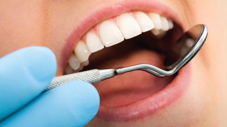 5 choses à connaître sur les dents de sagesse !