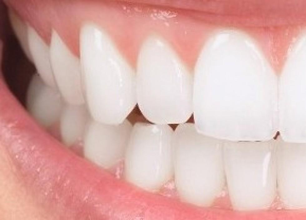 5 choses à connaitre sur les couronnes dentaires