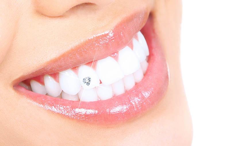 Les bijoux dentaires pour un sourire étincelant !