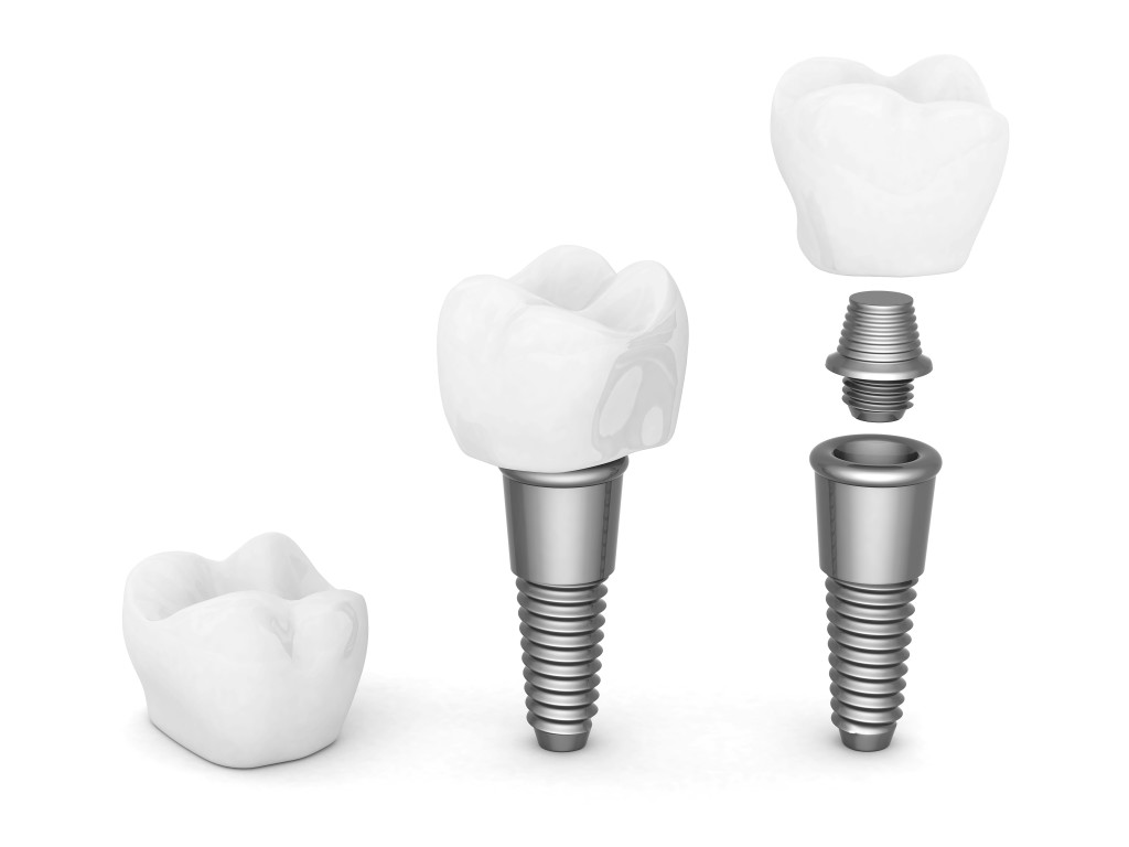 marque implant dentaire