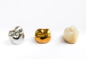 quelle prothèse dentaire choisir