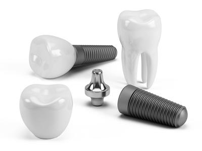 les implants dentaires moins chers