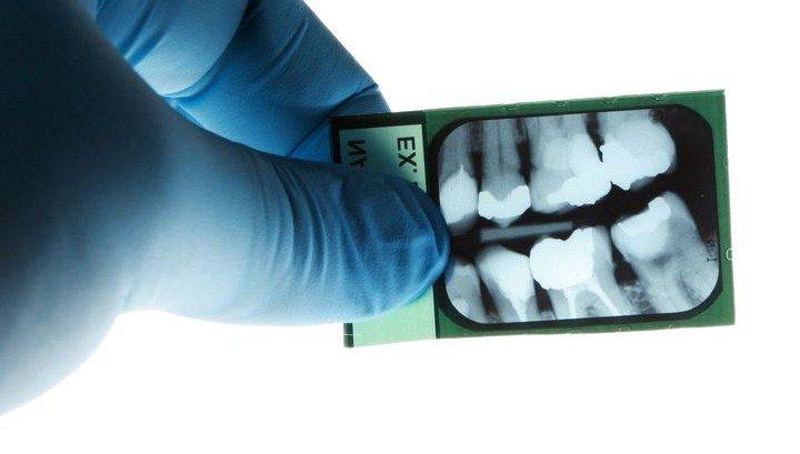 Dentiste en Hongrie 14