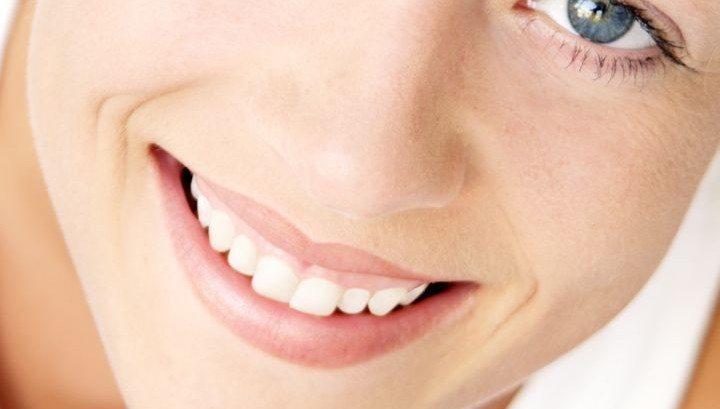 Dentisterie esthetique 6