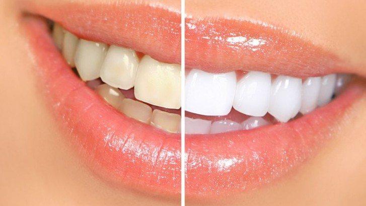 Blanchiment des dents 4