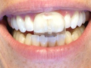grincer des dents la nuit